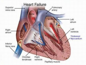 causes-of-heart-disease-300x226