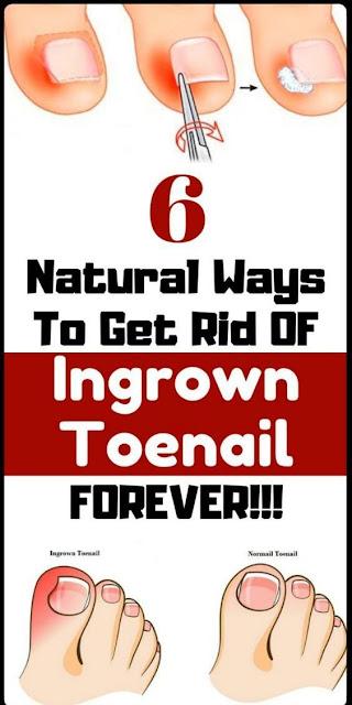 6 Effective Home Remedies to Get Rid of an Ingrown Toenail