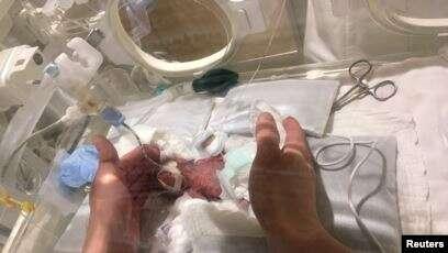 Lahir Seukuran Buah Apel, Saybie Jadi Bayi Terkecil di Dunia