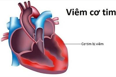 Hình ảnh một trái tim bị van cơ tim