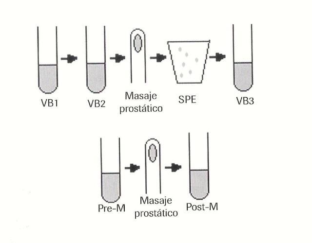 prostatitis recurrente y síntomas de sida
