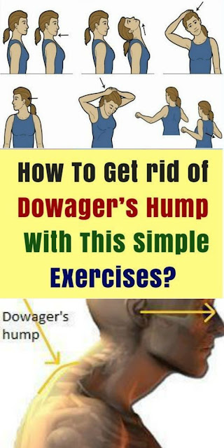 HOW TO GET RID OF DOWAGER & HUMP WITH THIS SIMPLE EXERCISES