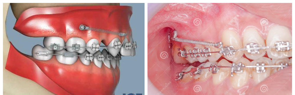 My braces story 3 second and final stage put on 4 screws the mini screws were frequently used by many braces case to pull the teeth inward most of them will be placed on your upper gum and some case will be lower solutioingenieria Choice Image