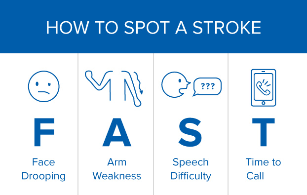 Advances in technology are helping treat stroke