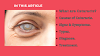 What is Cataract in Simple Words? | Cataract Eye Symptoms 2021