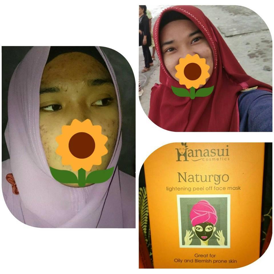 Masker Naturgo Hanasui Solusi Untuk Wajah Berjerawat Dan Kusam Lumpur Shiseido Asli