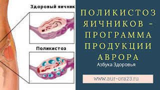 Поликистоз яичников - программа продукции Аврора