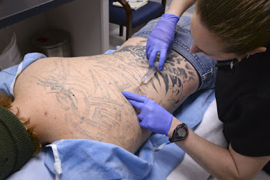 laser tattoo removal that 6 wrong things to avoid
