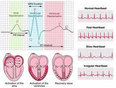 Infographics Showing Electrocardiogram ECG Diagrammatic report print