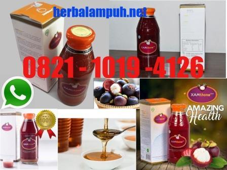 ramuan herbal jantung koroner, cara herbal mengatasi jantung koroner, penanganan herbal jantung koroner