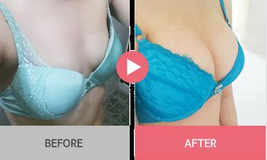 phẫu thuật thẩm mỹ nâng ngực nội soi