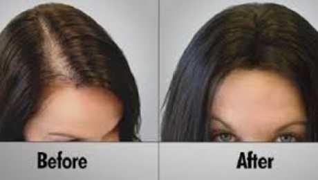وصفات الثوم لتطويل الشعر والحد من تساقطه