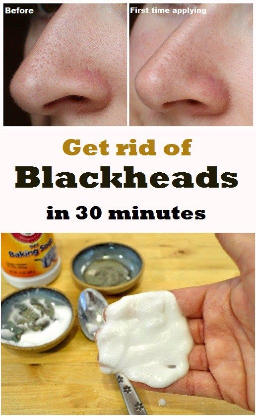 Remove Blackheads in 30 minutes