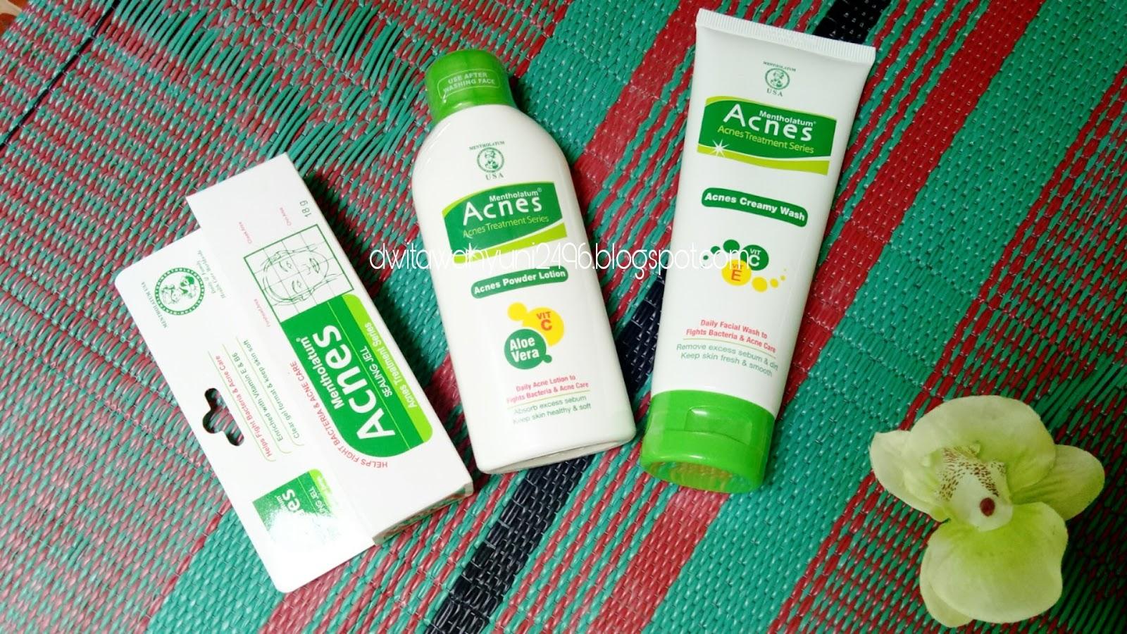 Gadis Kacang Bali Review Acnes Starter Pack Treatment Series Spot Care Obat Jerawat