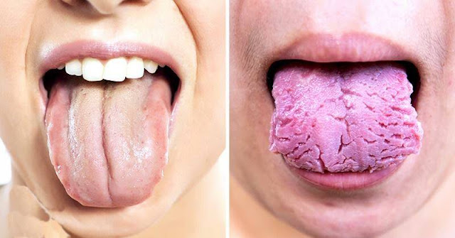3 Things Your Tongue is Trying to Reveal About Your Health