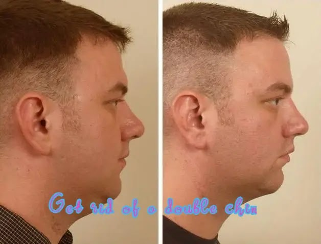 10 simplest remedies and 8 exercises to get rid of a double chin