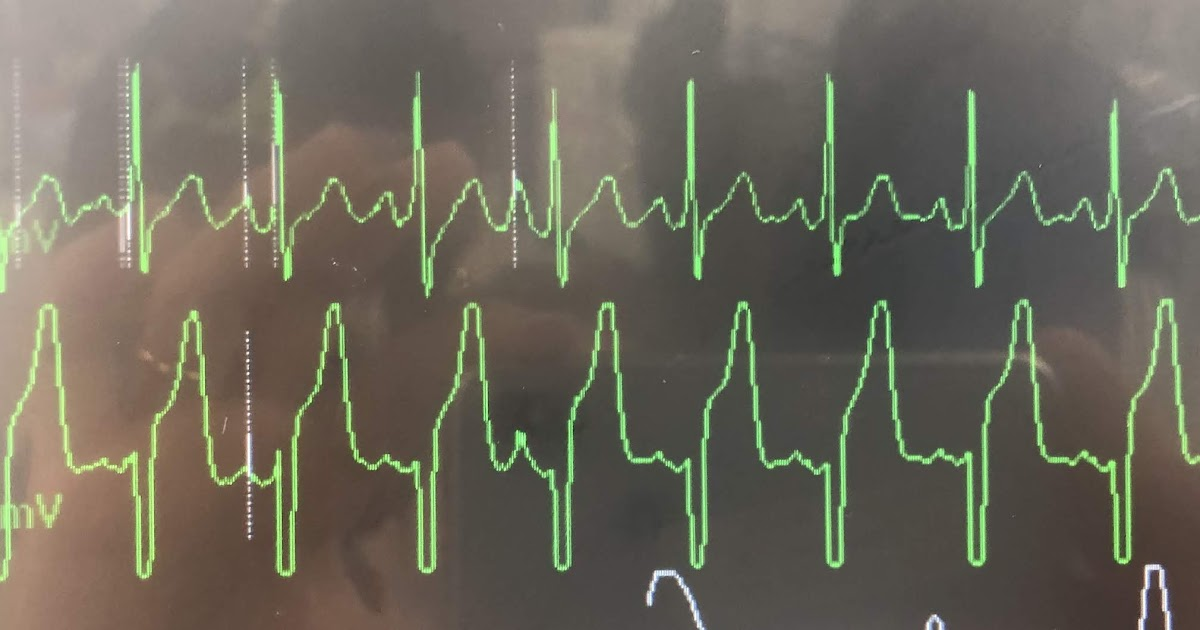 Placement telemetry monitoring lead ECG Lead