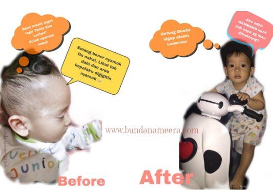 Laderma scar repair cream, review laderma, cara ampuh menghilangkan luka pada bayi, cara mudah menhilangkan bekas gigitan nyamuk