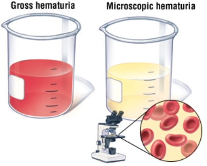 Cara Mengobati Penyakit Hematuria Atau Kencing Darah