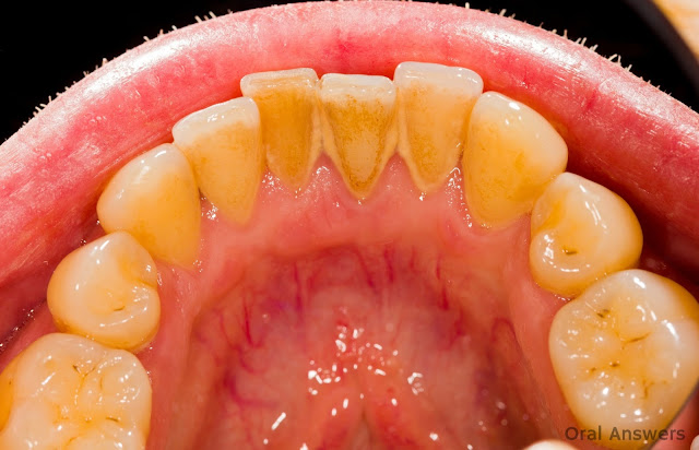 Remove The Tartar On Teeth And Gums By Using This One Simple Ingredient!