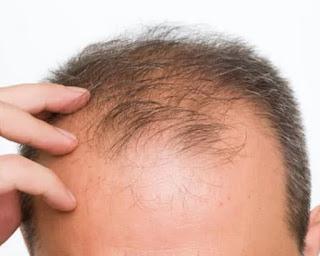 أسباب تراجع الشعر من الأمام