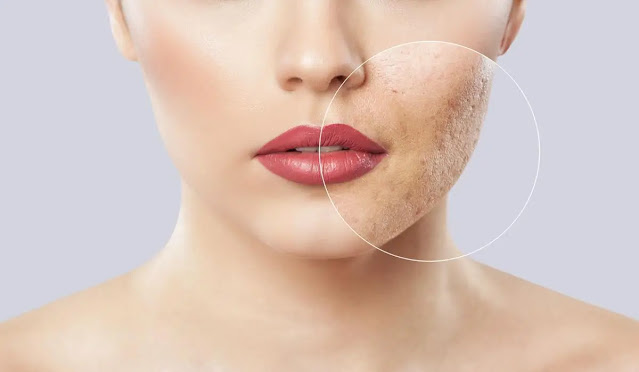 Fair Lovely Facial Foam Mengurangi Noda Hitam
