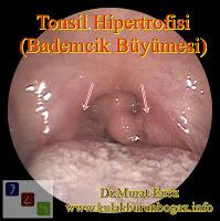 tonsil enlargement