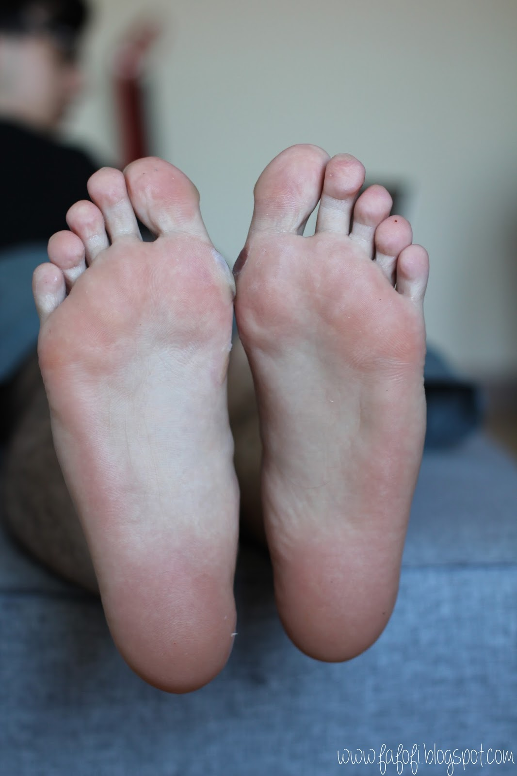 Kocostar Foot Therapy Male Foot Bottom After