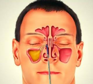 Didirikan obat untuk infeksi Sinus