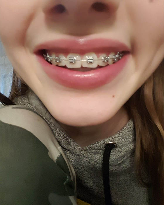 Fotos tumblr con brackets lindas