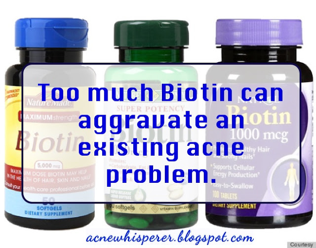 Too much Biotin can aggravate adult acne breakouts