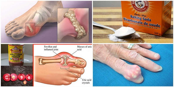 How To Easily Eliminate Uric Acid Crystallization And Prevent Joint Pain And Gout
