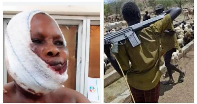 Fulani Herdsmen At It Again As They Use Gun Bullets To Shatter A Woman's Jaw And Fingers In Ogun State (Photos)