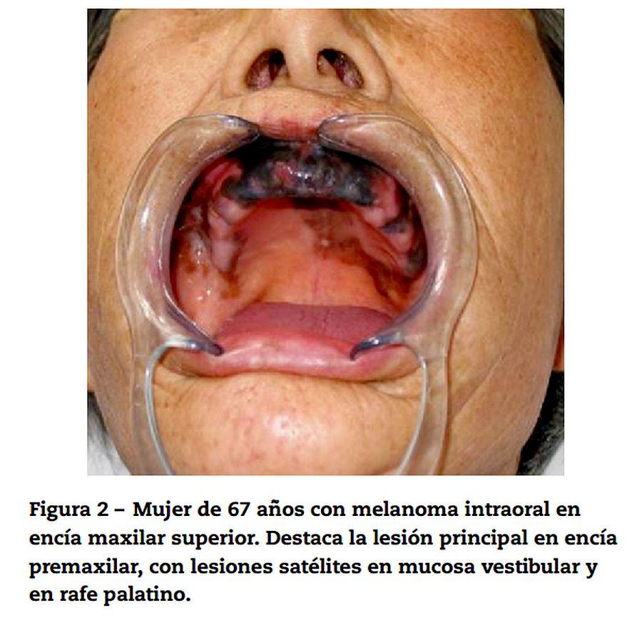 melanoma-oral