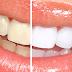 Does Tea Discolour Teeth?