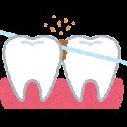 フロスで歯間を磨くイラスト