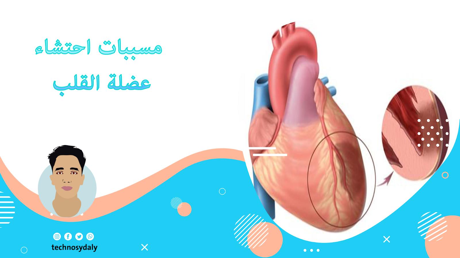 ماهي اسباب احتشاء عضلة القلب؟