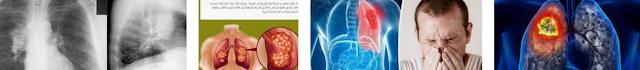 أعراض سرطان الرئة 2021