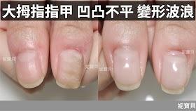 指甲矯正-大拇指凹凸不平、變形波浪,順利矯正到健康的問題指甲處理案例!