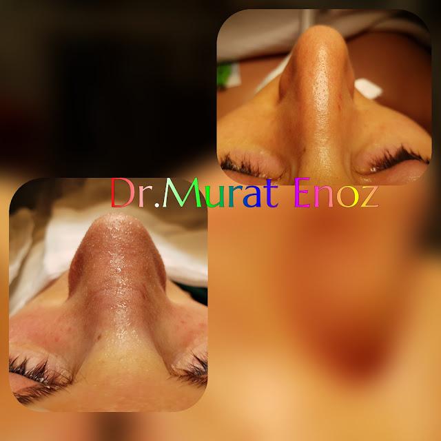 Nazal Valv Cerrahisi ve Burun Estetiği Ameliyatı