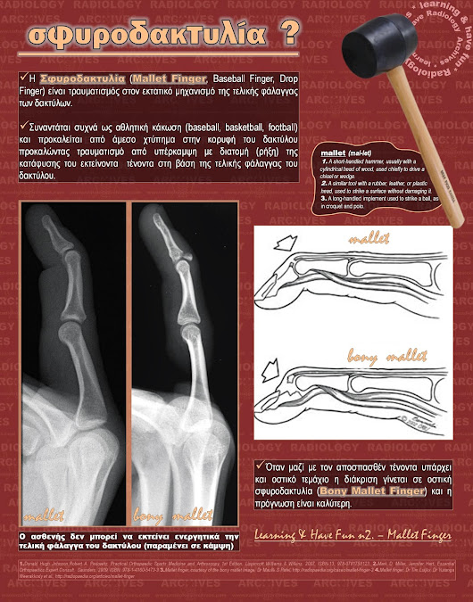 Radiology  Archives: Learning & Have Fun n2. - Mallet Finger