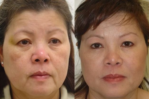 Do Face Gymnastics Workout Techniques Work For Anti Aging The Key To What Facial Yoga Can Your And Throat Is Here Practicing A Number Of