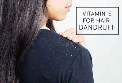 Reducing Dandruff and Make Scalp Healthy