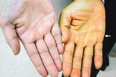 Pantangan Makanan Bagi Penderita Penyakit Kuning
