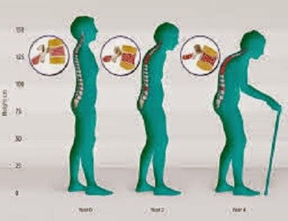 Obesitas: Masalah Kesehatan Global
