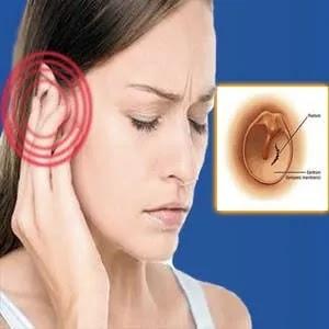 اعراض تمزق طبلة الاذن