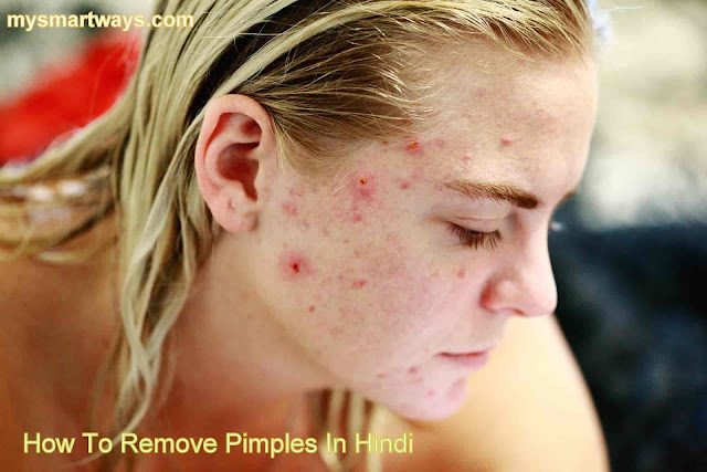 How To Remove Pimples At home In Hindi