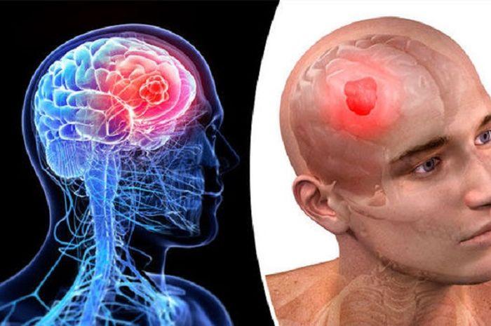 Mengatasi Tumor Otak Dengan Nutrisi
