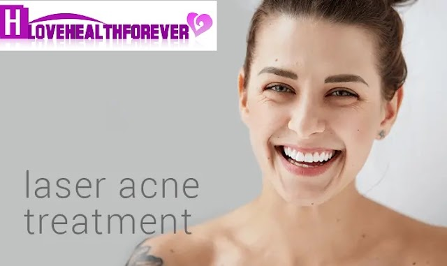 Laser Acne Skin Care Treatments