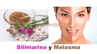 Silimarina y Melasma